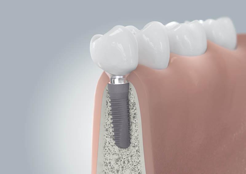 CAMLOG Implantation mit Versorgung - Zahnimplantate