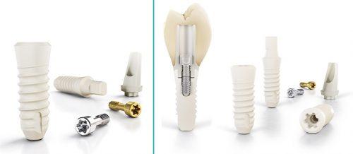 Keramik Zahnimplantate - Zahnarztpraxis für Implantologie und Implantate in Neu-isenburg