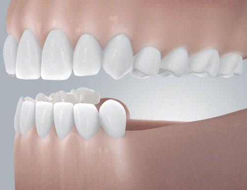 Zahnimplantate- Implantatversorgung - Lücke