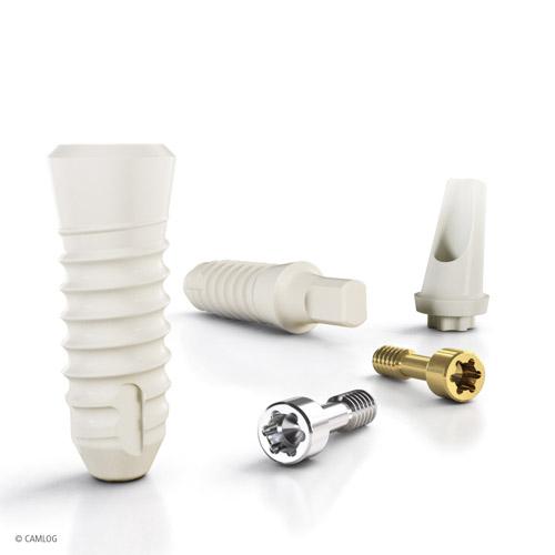 Keramik Implantate - Zahnarztpraxis für Implantologie und Zahnimplantate in Neu-isenburg